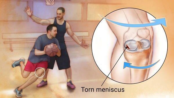 Meniscus sérülés