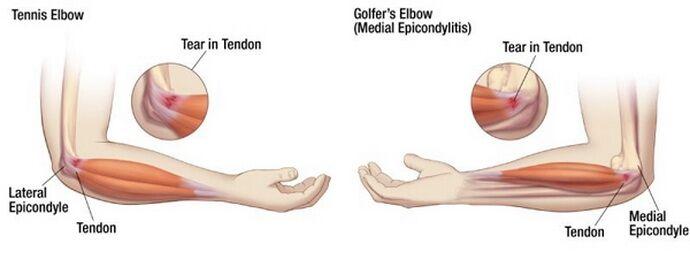 fájdalom a könyökízület jobb karjában hemofília ízületi kezelés